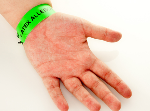 Arm with Latex Allergy Band showing Biocompatibility